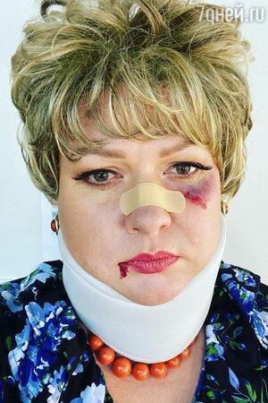 Синяк под глазом и лейкопластырь на носу: Картункова напугала разбитым в кровь лицом