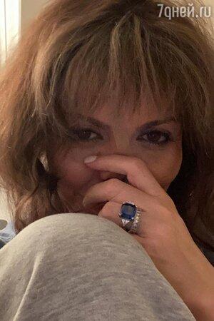 «Умираю» Бывшая жена Аршавина показала жуткое фото после комы