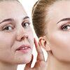 12 эффективных бьюти-средств от морщин, акне и мешков под глазами с AliExpress