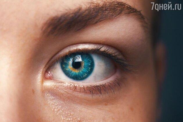 Вокруг глаз появились морщины